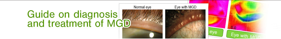 Guide on diagnosis and treatment of MGD