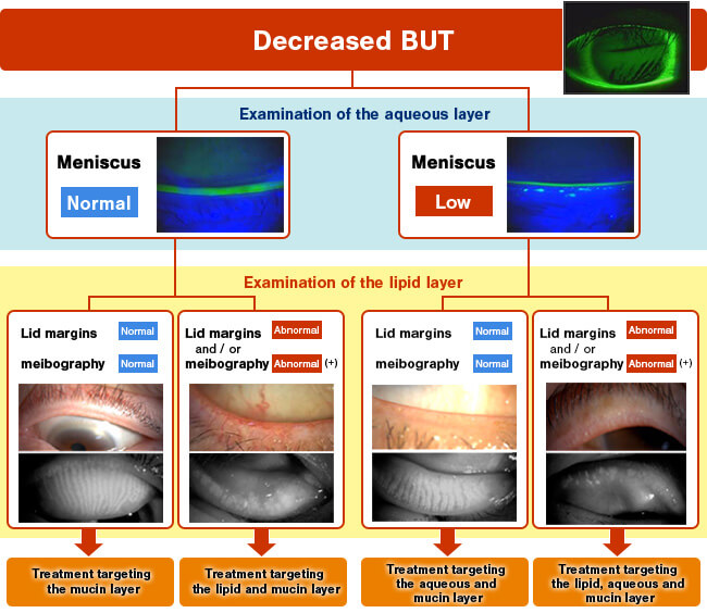 Fig. 5: Examination of the lipid layer for targeted treatment of dry eye