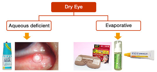 Fig. 2: Classification of dry eye
