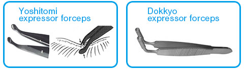Various meibomian gland expressor forceps