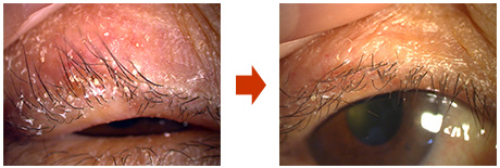 Fig. 3: A case where only lid hygiene was performed for 2 weeks and MGD was alleviated