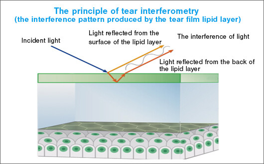 Fig. 2: Interference colors are produced by the different paths taken by light reflected by the surface of the tear film lipid layer and light reflected by the back of the lipid layer