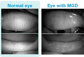 Fig. 1-b: L: Normal eye, R: Eye with MGD