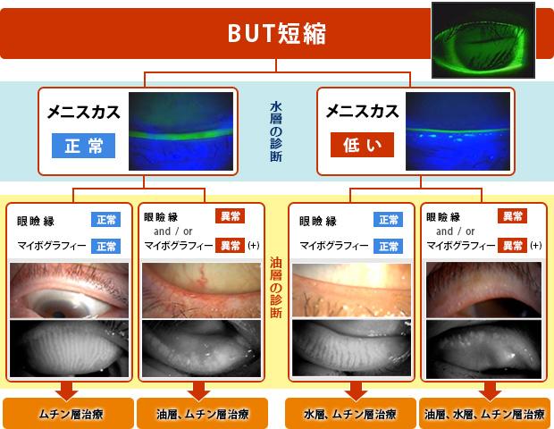 (図5)ドライアイ層別診療における油層診断