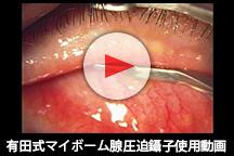 有田式マイボーム腺圧迫鑷子使用動画