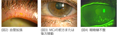 マイボーム腺開口部周囲異常所見