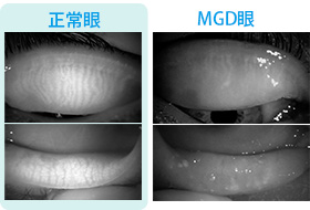 (図1-b)左:正常眼、右:MGD眼