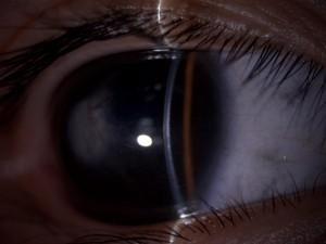角膜混濁症例,3歳女児(初診時は3ヶ月)。キョロキョロして診察させてくれません。