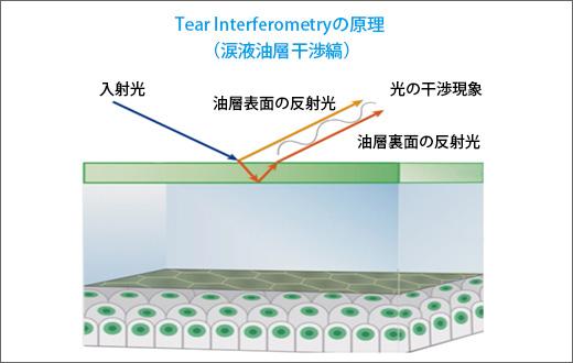 涙液油層表面からの反射光と裏面からの反射光との光路差によって干渉色が出現する(スライド提供:興和(株)※一部改編)