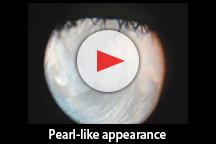 Pearl-like appearance