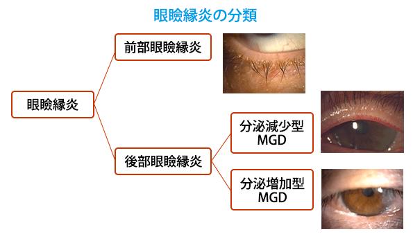 (図3)眼瞼縁炎の分類