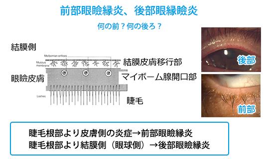 (図5)前眼部眼瞼縁炎、後部眼瞼縁炎