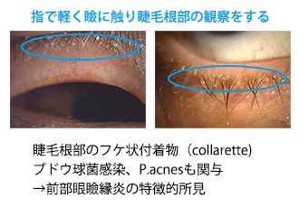 (図6)前部眼瞼縁炎診断のコツ