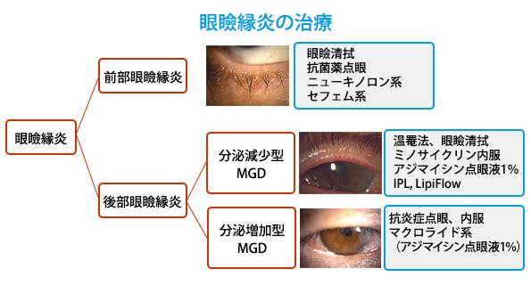 (図10)眼瞼縁炎の治療