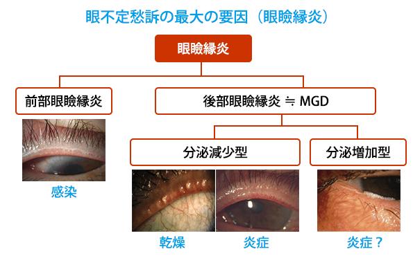 (図4)眼不定愁訴の最大の要因:眼瞼縁炎
