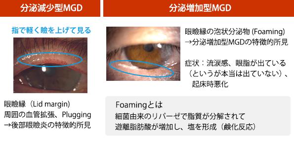 後部眼瞼縁炎診断のコツ<br>左:(図7)分泌減少型MGD、右:(図8)分泌増加型MGD